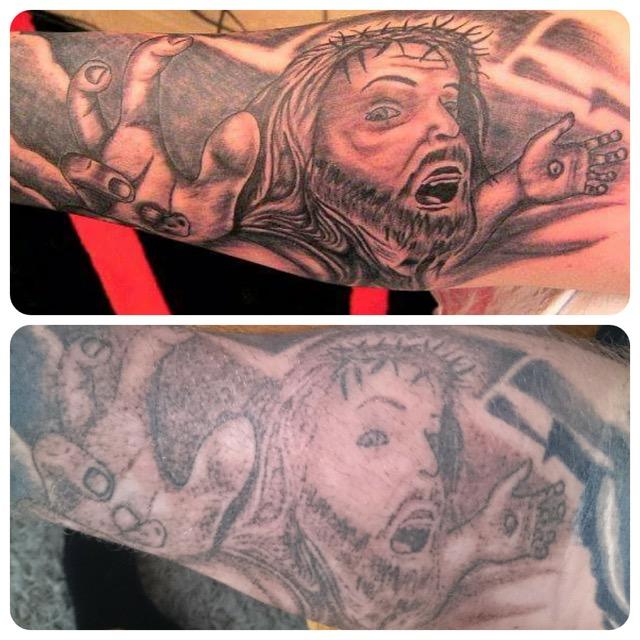 laserborttagning tatuering malmö