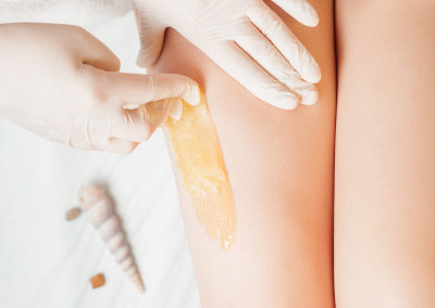 Sugaring epilation skin care with liquid sugar at legs